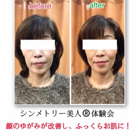 【お客様の声】顔の長さがギュッとなって短くなった!!