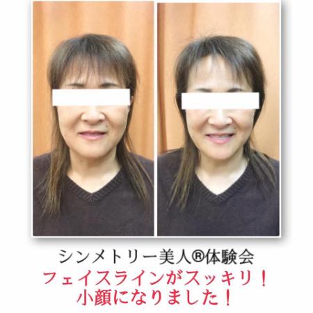 【お客様の声】脱おばさん顔!お顔の長さが短くなり、若返った!