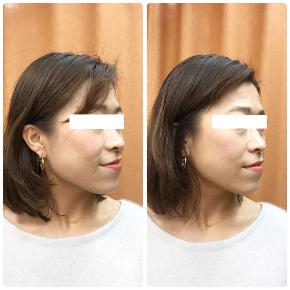 ピラティスでは顔のゆがみは自分でケアできないから【お客様の声】
