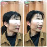 【ビフォーアフター】美白したかの様に顔色が良くなりました!
